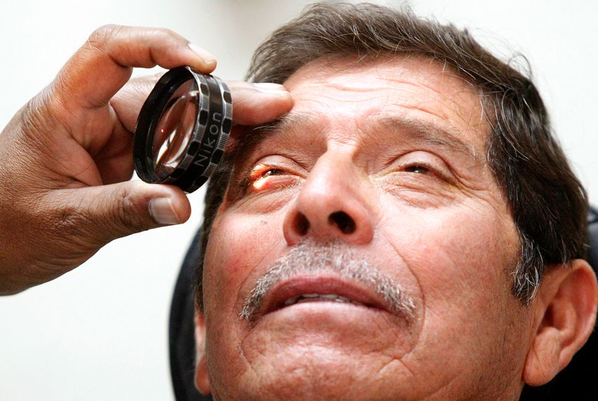 Veteran Jose Juan Herrera gets his eyes checked by Dr. Alexander P. Sudarshan, an ophthalmologist in Weslaco who treats veterans referred by Veterans Affairs.