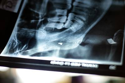 An x-ray of Walter Alexander Sanchez jaw reveals a fragment of the bullet that entered his jaw. Sanchez was shot while working his bus route in Tegucigalpa, Honduras. He fled with his family and is planning on seeking asylum. Nov. 16, 2019.