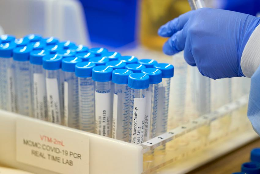 A lab at Methodist Dallas Medical Center prepares viral transport media for samples before collecting samples for COVID-19 i…