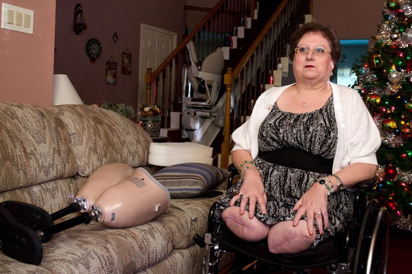 Connie Spears had to have both legs amputated above the knee, and blames an emergency room doctor for missing a critical diagnosis. The San Antonio woman's search for an attorney to take her case has been futile.