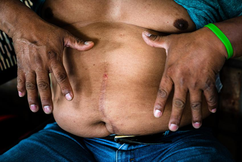 Guatemalan asylum seeker Jorge Mario Gonzalez, 52, shows his scars from a surgery he had after being shot in his country at …