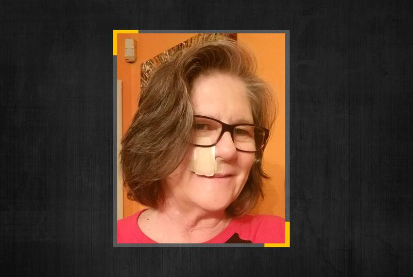 Susan Carson of Dallas wears a bandage from a previous surgery to remove skin cancer, but when a recent biopsy came back c...