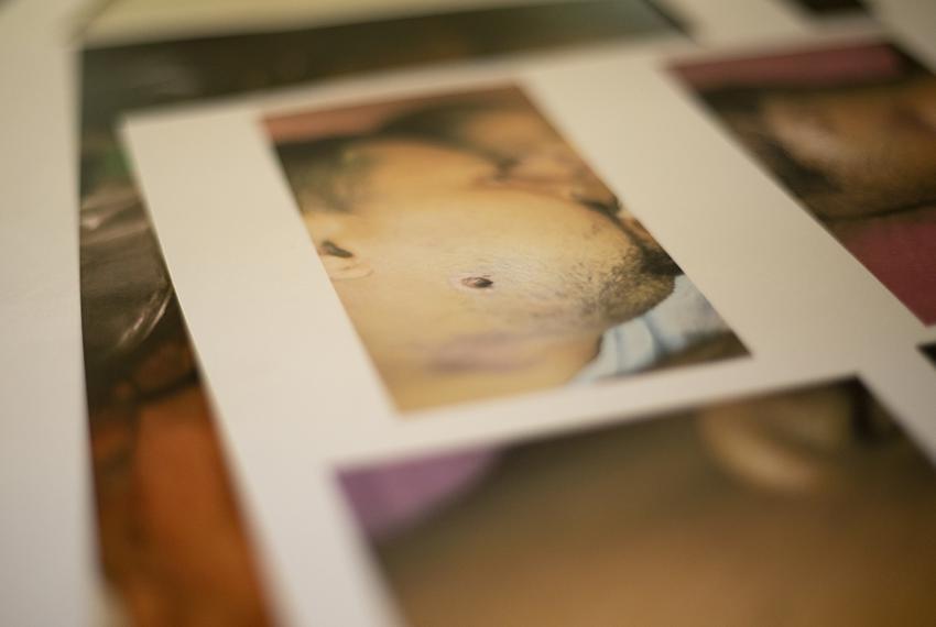 A photocopy of a photograph demonstrates where a bullet entered Walter Alexander Sanchezís face. Sanchez was assaulted wh...