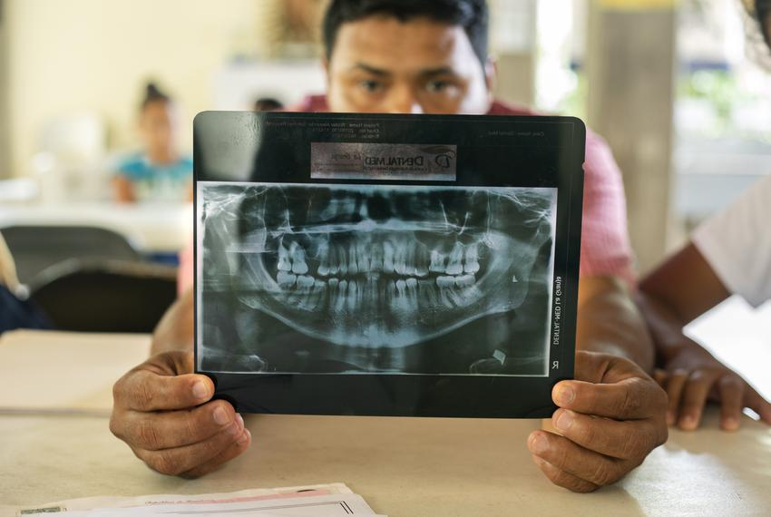 Walter Alexander Sanchez holds up an x-ray demonstrating the damage inflicted by a bullet wound on his jaw. Sanchez fled Hon…