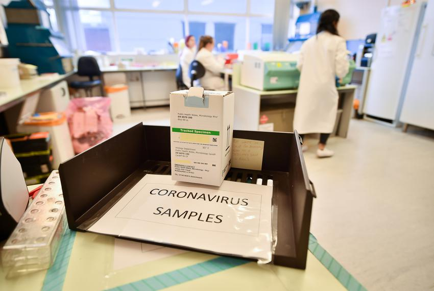 Coronavirus COVID-19 samples from patients sit in an in-tray as lab technicians carry out a diagnostic test for coronaviru...